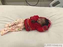 Help 3-month-old Gunjan fight a severe heart disease