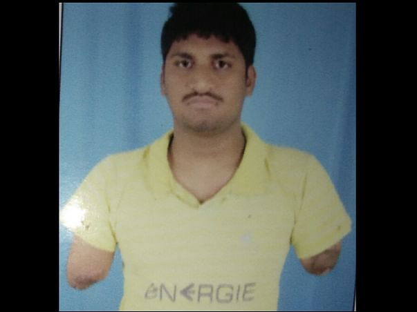 Help Srini To Have His Hands Transplanted