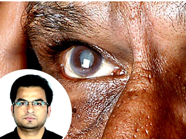 Sponsor A Cataract Surgery