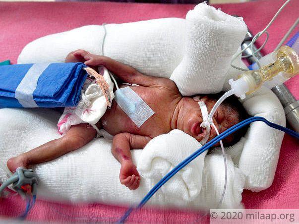 Help Akshaya and Mayur save their prematurely born twins