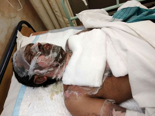 Help Pradeep Nayak(29 Yr) To Fight The Battle For His Life