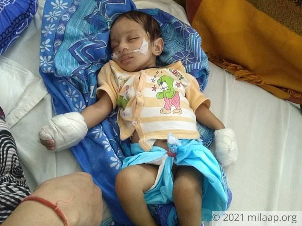 This 2-month-old baby needs an urgent heart surgery to survive