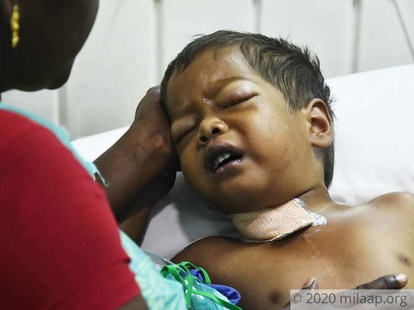 Our Son Will Take His Last Breath If He Does Not Get A Heart Surgery
