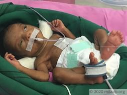 Priyanka Premature Babies Are Struggling To Live In The ICU