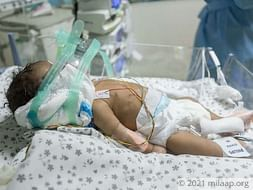 Help this 2-month-old boy who is fighting for his life
