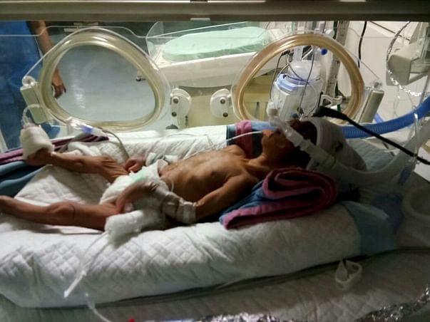 Help Kumara Swamy To Save His Premature Born Baby Boy