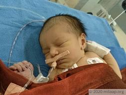 4 Days Old, This Baby Girl Risks Losing Her Life To A Heart Disease