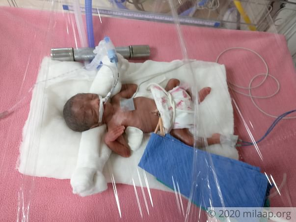Help Sujata and Pravin save ther prematurely born babies