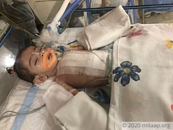 This 3-month-old baby needs an urgent heart surgery to survive