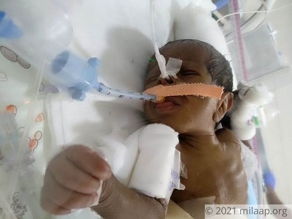 Help Revathi save her baby boy born with a blocked intestine