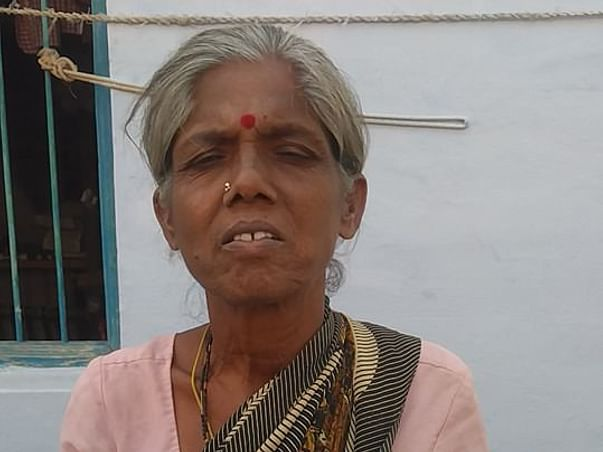 Help My Mother for  ileal conduit urinary diversion Operation