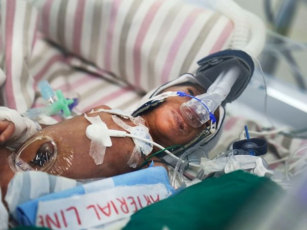 Petrol Pump Worker Races To Save 3Months Premature Born Twin Daughters