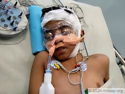 8-year-old Nihit is in a critical condition in the ICU and needs help