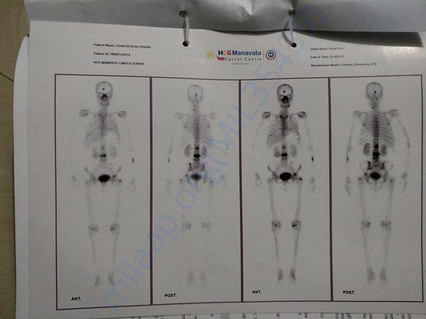 Bone Scan report 2