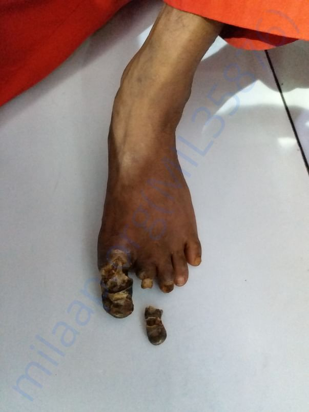 Left leg image
