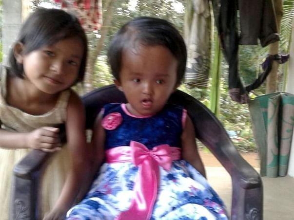 Help Reshmi  fight Hydrocephalus