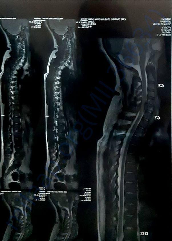 xray(spine)
