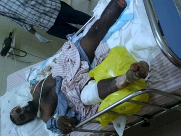 Help Venkatasubbaiah Who Got Electrocuted In Fire Accident.