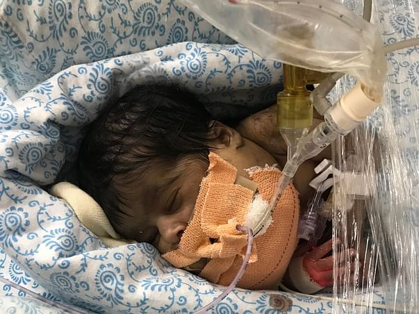 Help Baby Of Pushpa To Survive A Rare Condition