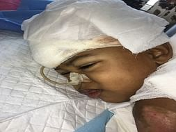 Fire Accident -  This baby 50% of body deeply burnt below her chest. .