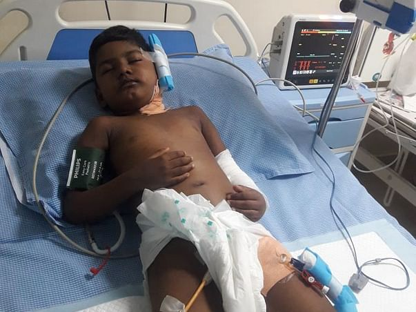 Urgent: 6-year-old Akhil Is In Severe Pain From Kidney Failure
