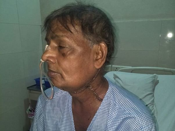 Help my father for fighting of tongue cancer