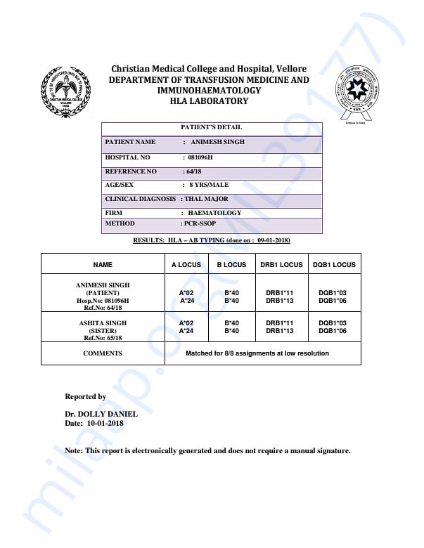 HLA Report matched with his sister