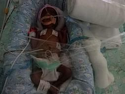 Help Shiva Save His 30 Day Old Premature Baby Girl.