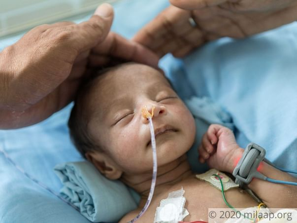 Baby Born With A Hole In His Stomach Is Fighting To Survive