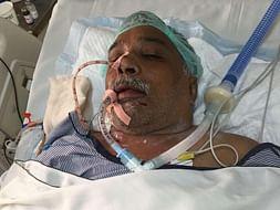 Help Rajkumar Talwar Fight Multiple Organ Damage.
