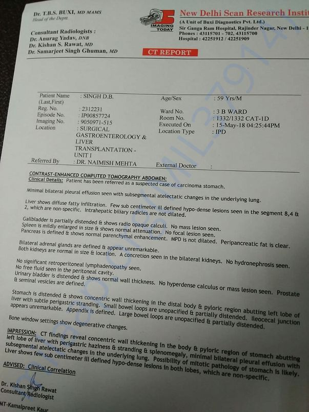 CT scan report