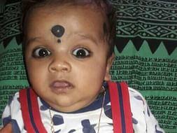 Kushal naga sai for bone marrow transplantation