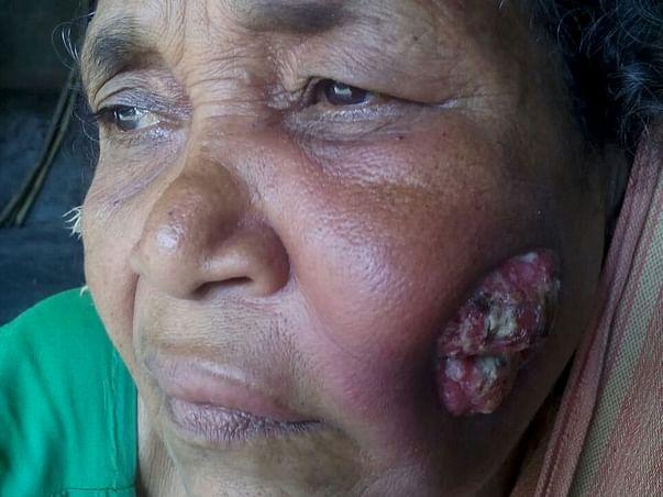 Help Mrs Genda Bewa Fight With Throat Cancer
