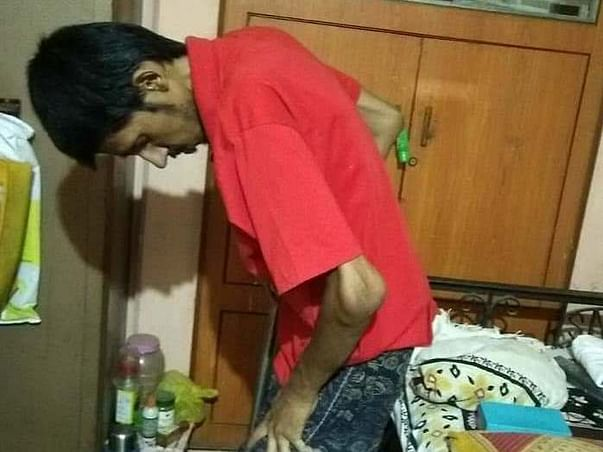 Help Nikhil Raje Fight Ankylosing Spondylitis