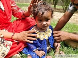 1-Year-Old Baby Disha's Failing Heart Has Almost Killed Her Twice
