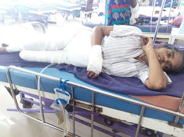 """""""Help Swarna fire accident"""" - She needs funds for medical expenses"""