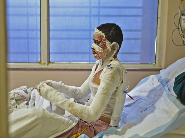 A Transformer Burst Has Left This 24-Year-Old Completely Burnt