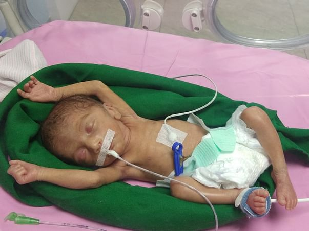 Help Female Baby of Rani & Gorakh Mawurya