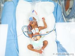 Help this first-time parents save their premature baby boy