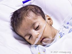 Mother Cannot Afford To Save 2-month-old Whose Own Saliva Chokes Lungs