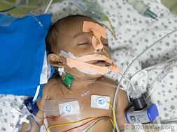 Savita's Newborn May Need A 3rd Surgery If He Cannot Get PICU Care