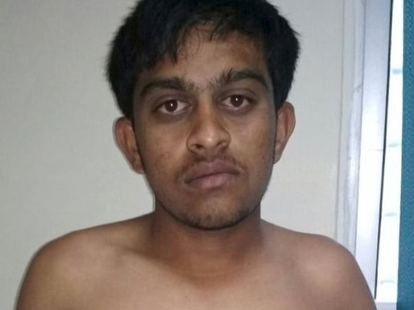 Help 18 Year Old Murali With A Scoliosis (spine) Surgery