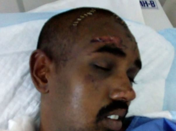 Help Gautam Who Met With An Accident And Is Critical.