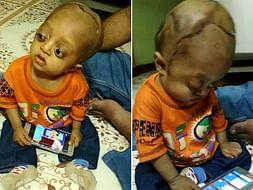 Help Ibrahim Lead A Normal Life