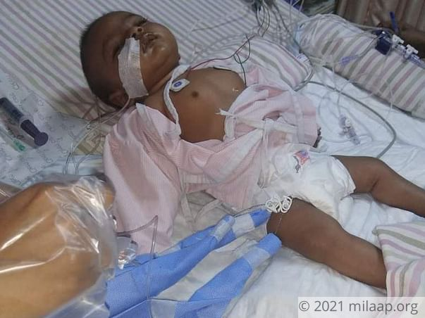 1-Year-Old Baby Girl Needs An Urgent Liver Transplant To Survive