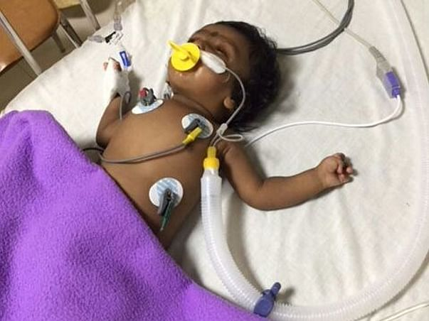 Help 3 Month Old Baby Angela For Heart Surgery