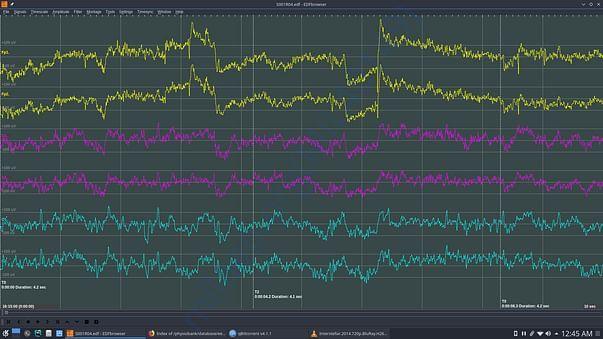 Dataset for brainwave