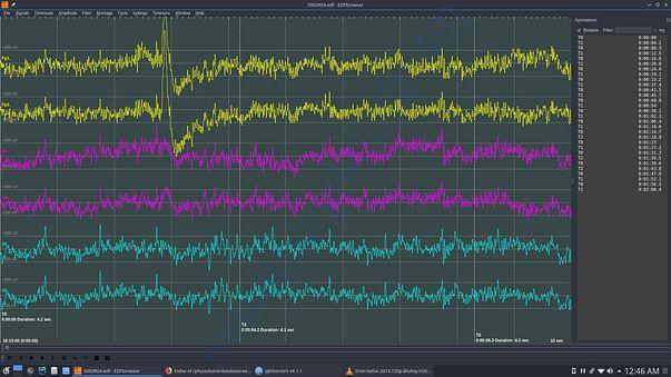 Dataset 2 for brainwaves