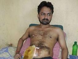 Help Pankaj Undergo His 8th Operation