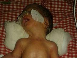 Help Ashok premature baby survive